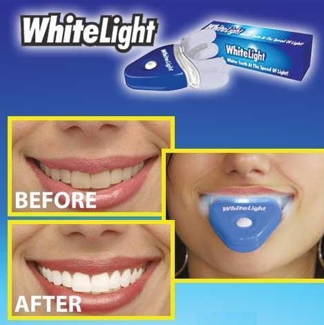 Branqueador Dentario A Nossa Vida